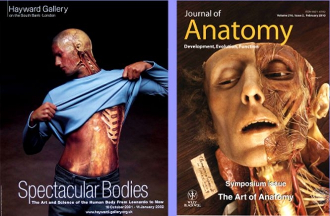 XII wax on the cover of the Journal of Anatomy (Editor Gillian Morris Kay, 2010), on the left, the cover of the exhibition catalog Spectacular Bodies of the Royal Festival Hall Hayward Gallery (London Oct 2000- January 2001)